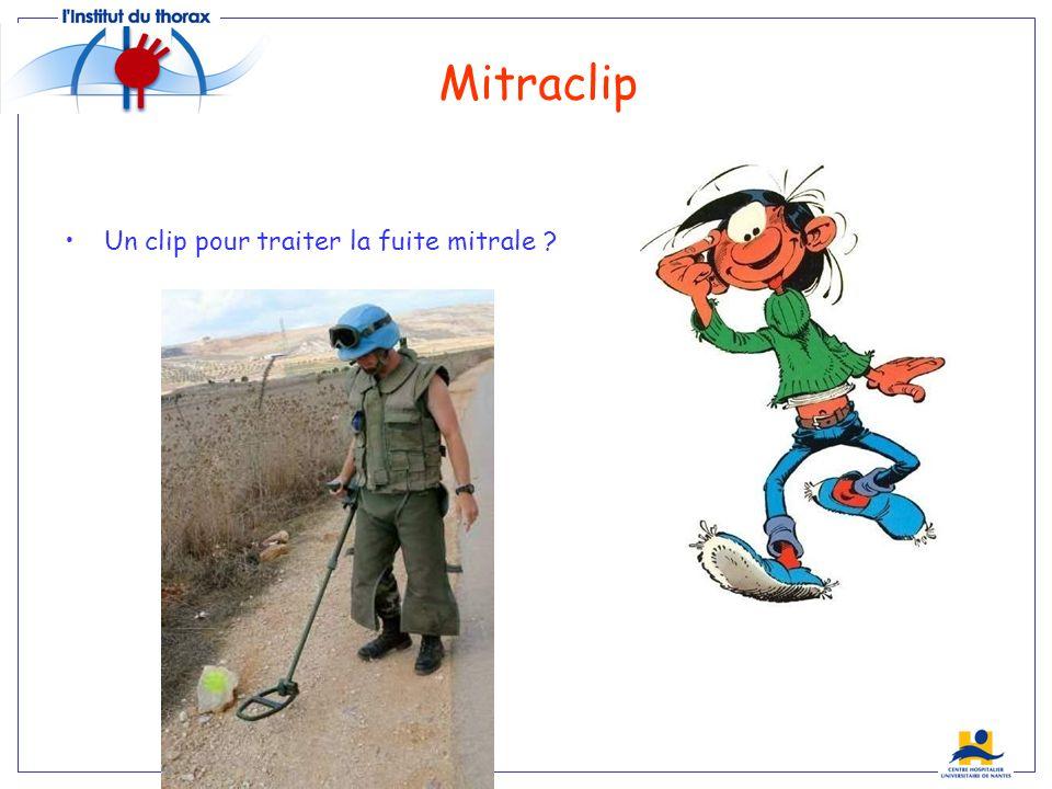 Mitraclip Un clip pour traiter la fuite mitrale ? Everest…