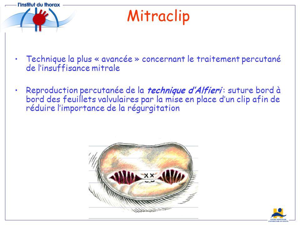 Technique la plus « avancée » concernant le traitement percutané de linsuffisance mitrale Reproduction percutanée de la technique dAlfieri : suture bo