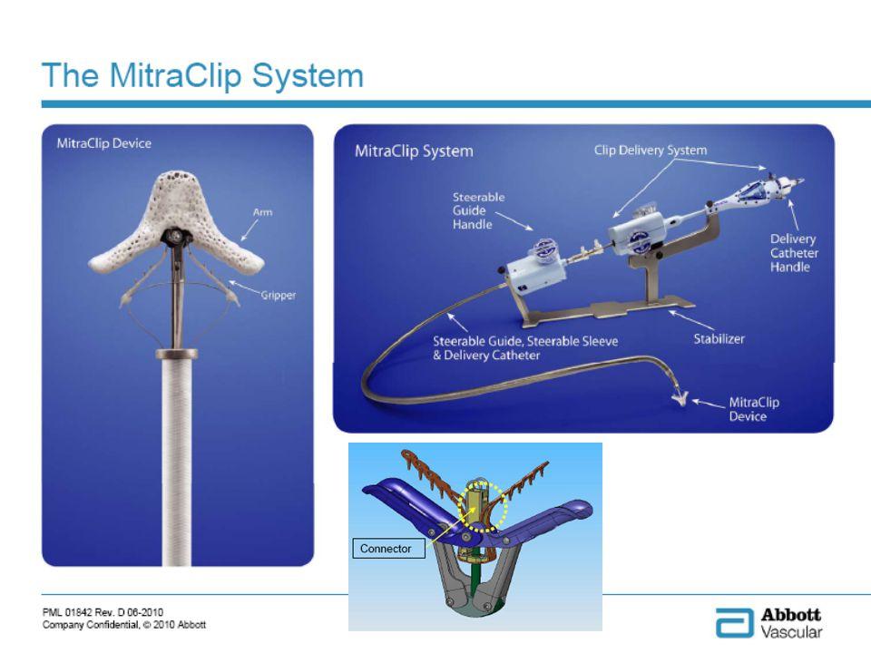 84% des patients implantés dun Mitraclip qui ont nécessité une chirurgie mitrale ont pu avoir une plastie mitrale +++ Feldman et al.