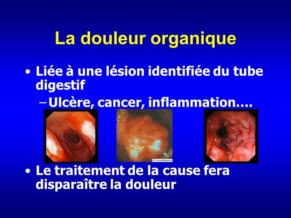 La douleur organique Liée à une lésion identifiée du tube digestif –Ulcère, cancer, inflammation…. Le traitement de la cause fera disparaître la doule