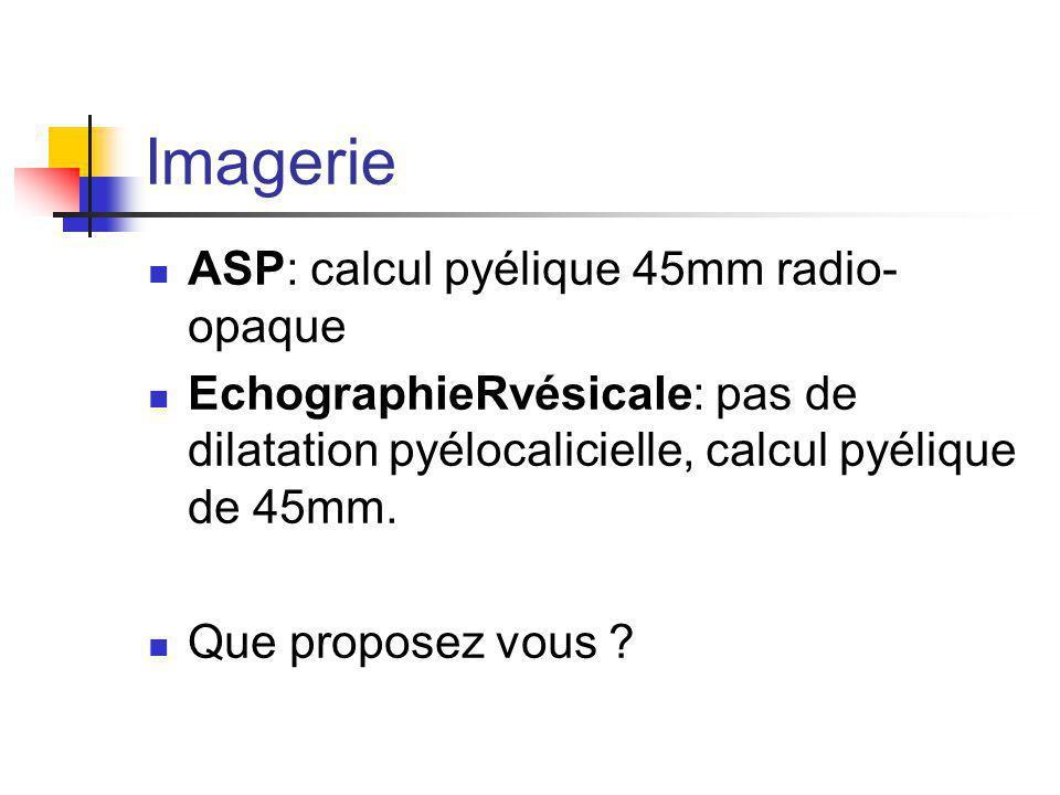 Imagerie ASP: calcul pyélique 45mm radio- opaque EchographieRvésicale: pas de dilatation pyélocalicielle, calcul pyélique de 45mm.