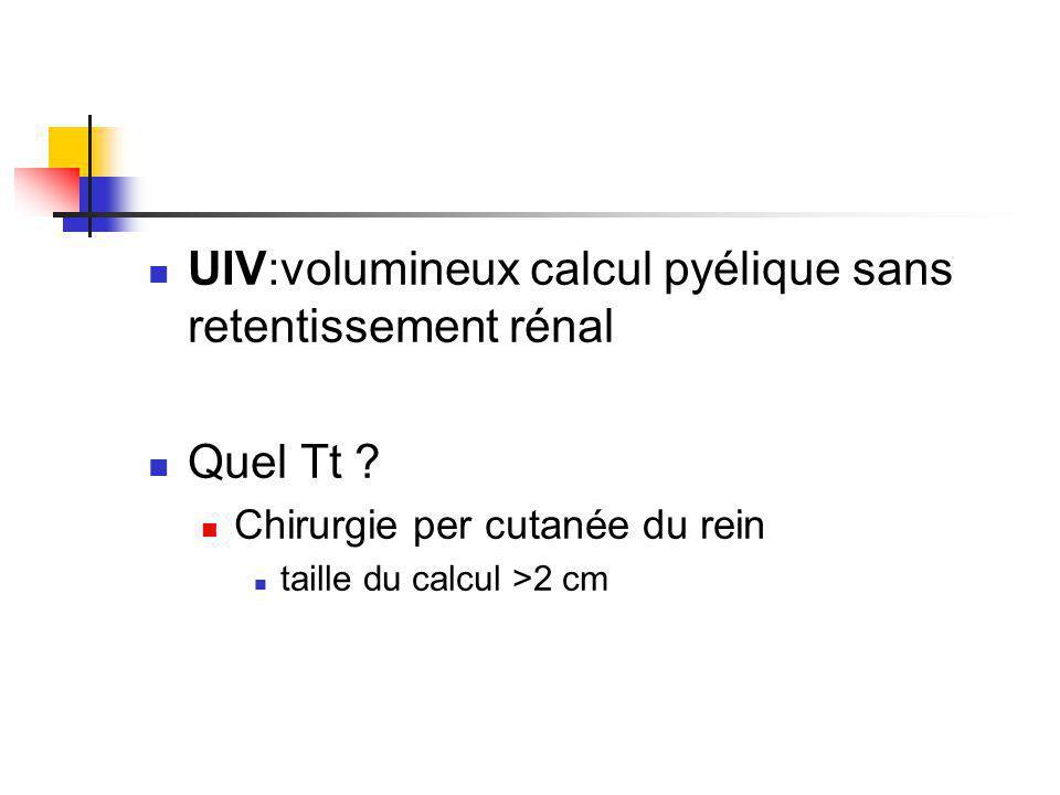 UIV:volumineux calcul pyélique sans retentissement rénal Quel Tt .