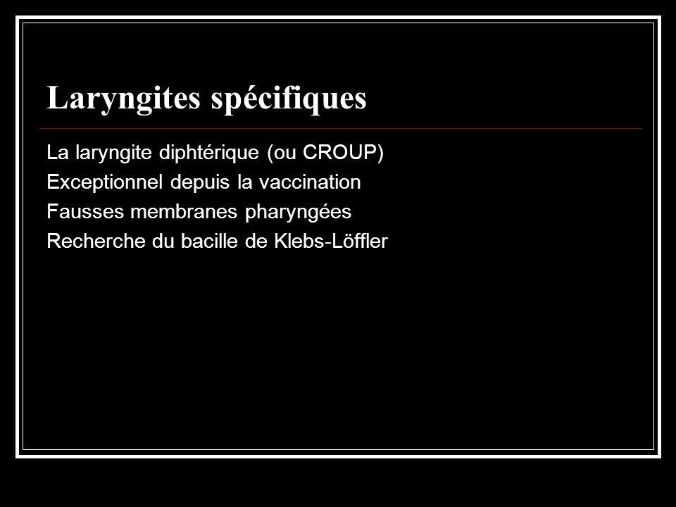 Laryngites spécifiques La laryngite diphtérique (ou CROUP) Exceptionnel depuis la vaccination Fausses membranes pharyngées Recherche du bacille de Kle