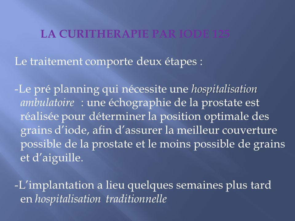LA CURITHERAPIE PAR IODE 125 Le traitement comporte deux étapes : hospitalisation -Le pré planning qui nécessite une hospitalisation ambulatoire : une