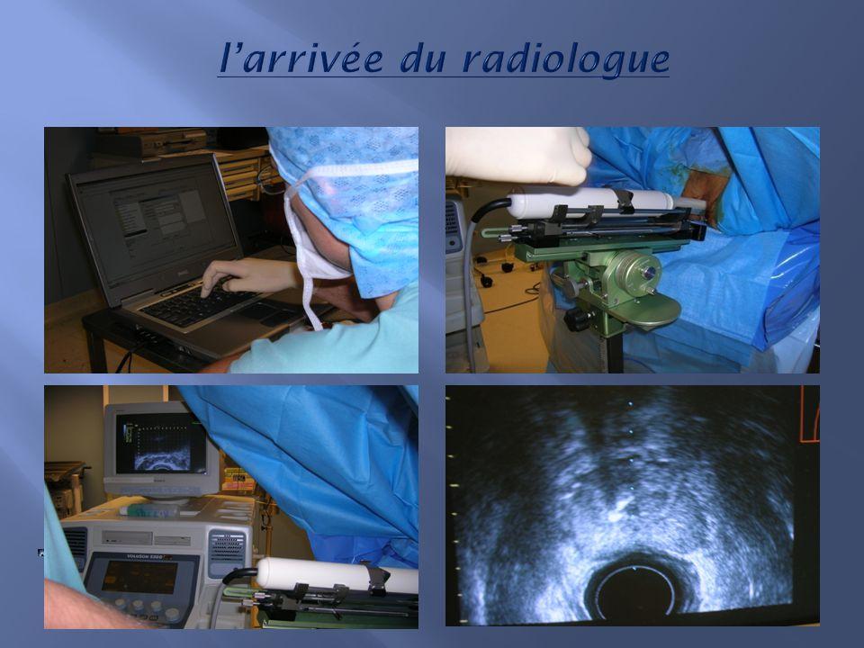 2/Positionner la sonde rectale. 2/Positionner la sonde rectale. 3/Echographie de la prostate.