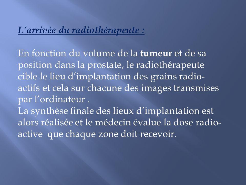 Larrivée du radiothérapeute : En fonction du volume de la tumeur et de sa position dans la prostate, le radiothérapeute cible le lieu dimplantation de