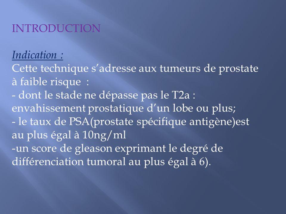 INTRODUCTION Indication : Cette technique sadresse aux tumeurs de prostate à faible risque : - dont le stade ne dépasse pas le T2a : envahissement pro