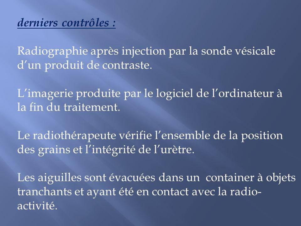 derniers contrôles : Radiographie après injection par la sonde vésicale dun produit de contraste. Limagerie produite par le logiciel de lordinateur à