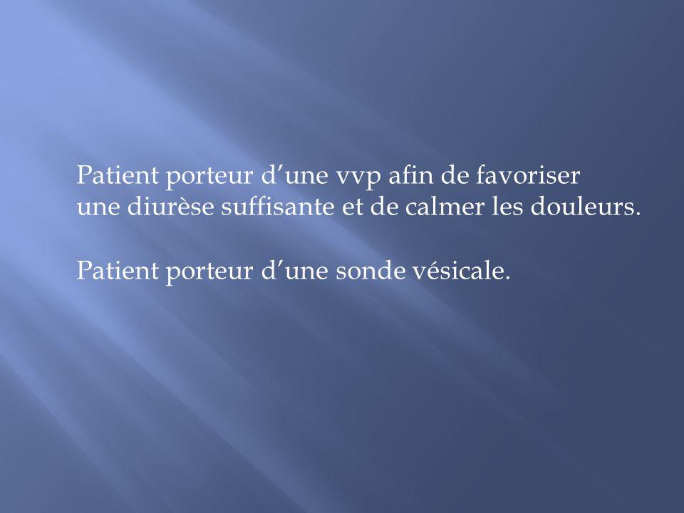 Patient porteur dune vvp afin de favoriser une diurèse suffisante et de calmer les douleurs. Patient porteur dune sonde vésicale.