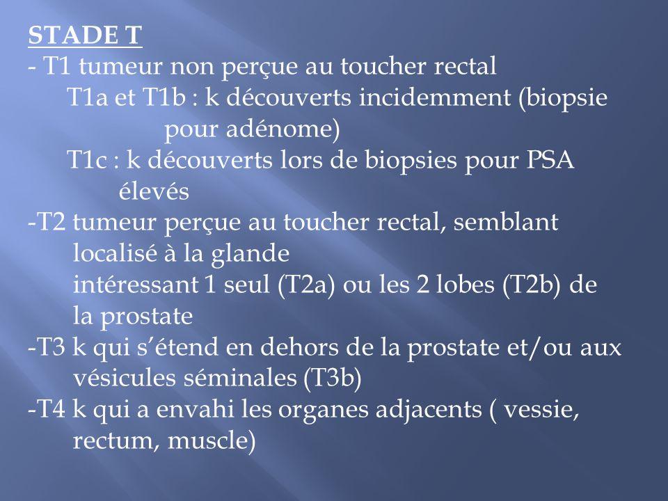 STADE T - T1 tumeur non perçue au toucher rectal T1a et T1b : k découverts incidemment (biopsie pour adénome) T1c : k découverts lors de biopsies pour
