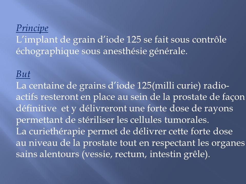 Principe Limplant de grain diode 125 se fait sous contrôle échographique sous anesthésie générale. But La centaine de grains diode 125(milli curie) ra