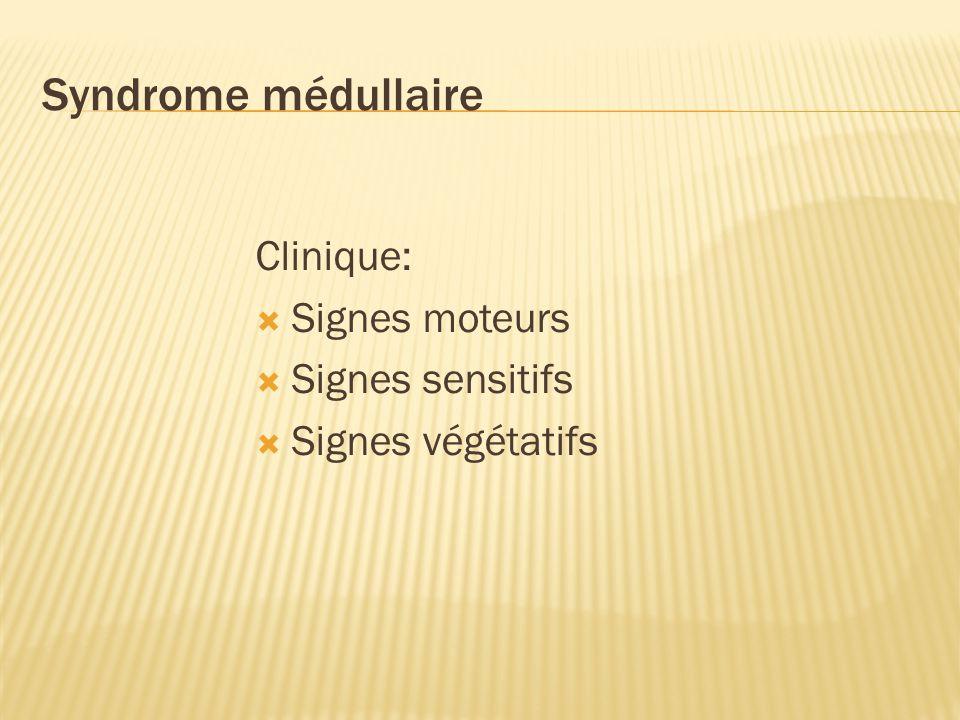 Syndrome médullaire Clinique: Signes moteurs Signes sensitifs Signes végétatifs