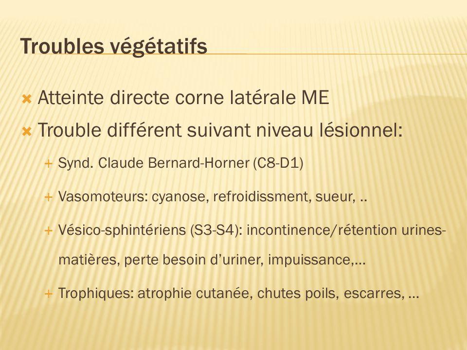 Troubles végétatifs Atteinte directe corne latérale ME Trouble différent suivant niveau lésionnel: Synd.