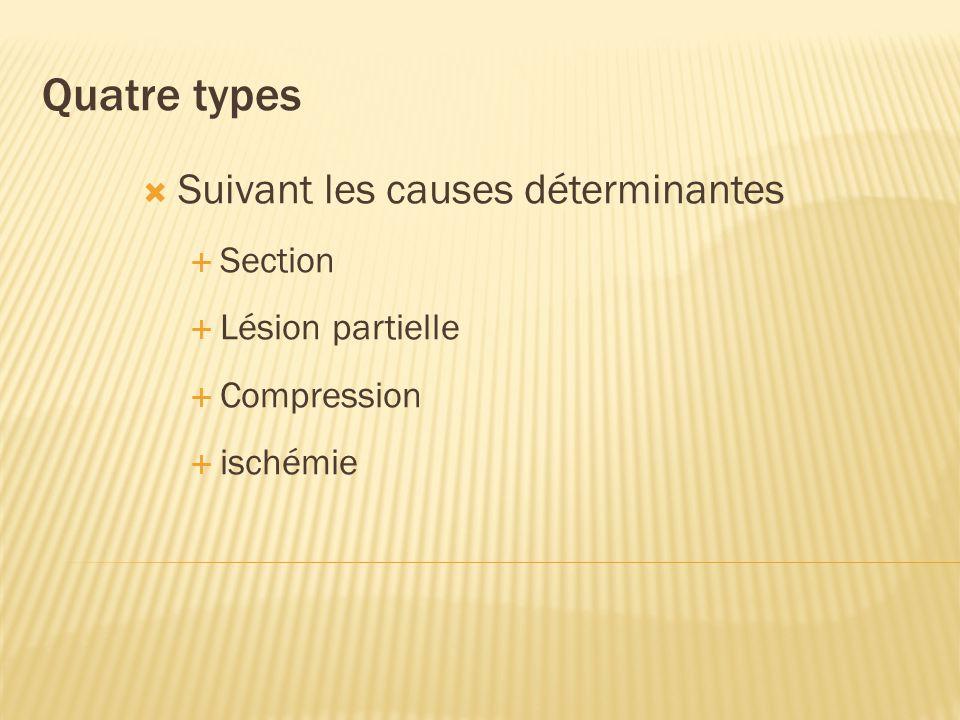 Quatre types Suivant les causes déterminantes Section Lésion partielle Compression ischémie