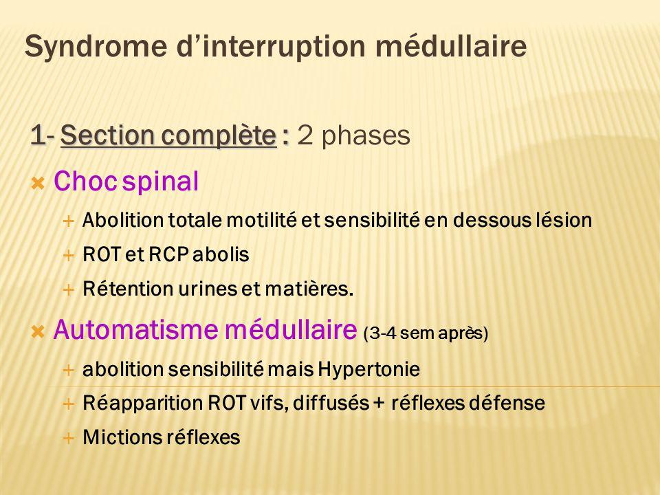 Syndrome dinterruption médullaire 1- Section complète : 1- Section complète : 2 phases Choc spinal Abolition totale motilité et sensibilité en dessous lésion ROT et RCP abolis Rétention urines et matières.
