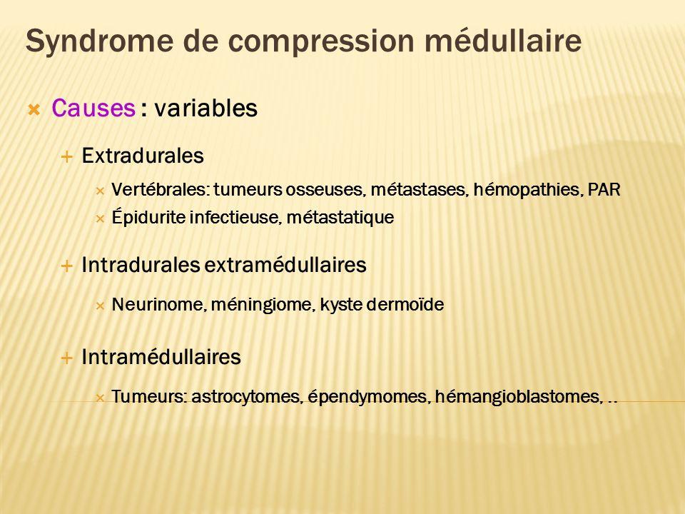 Syndrome de compression médullaire Causes : variables Extradurales Vertébrales: tumeurs osseuses, métastases, hémopathies, PAR Épidurite infectieuse, métastatique Intradurales extramédullaires Neurinome, méningiome, kyste dermoïde Intramédullaires Tumeurs: astrocytomes, épendymomes, hémangioblastomes,..