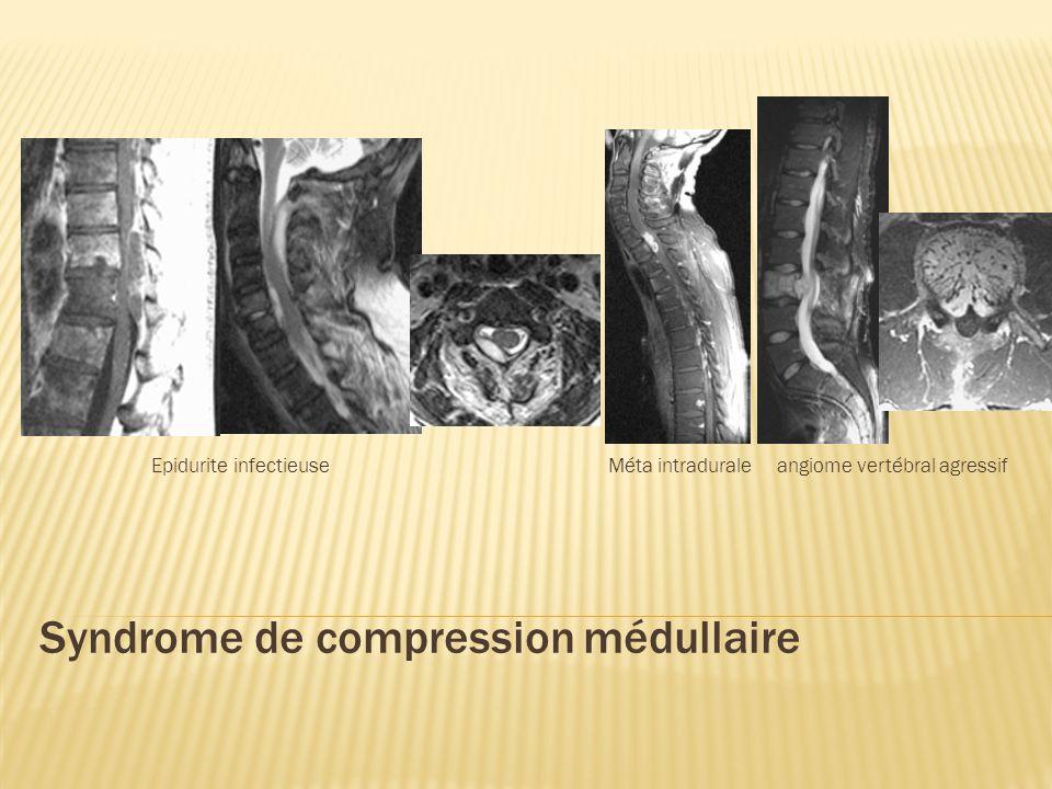 Syndrome de compression médullaire Epidurite infectieuse Méta intradurale angiome vertébral agressif