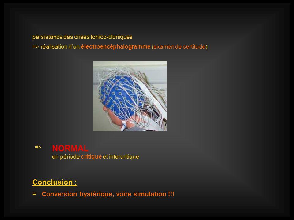 persistance des crises tonico-cloniques => réalisation dun électroencéphalogramme (examen de certitude) => NORMAL en période critique et intercritique Conclusion : = Conversion hystérique, voire simulation !!!
