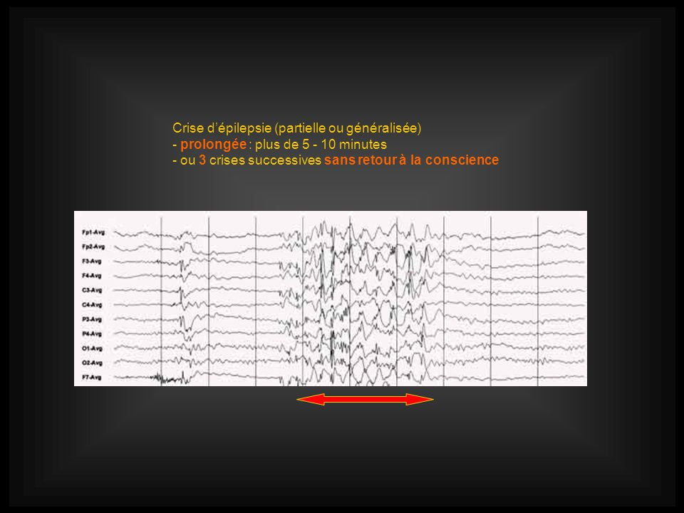 Crise dépilepsie (partielle ou généralisée) - prolongée : plus de 5 - 10 minutes - ou 3 crises successives sans retour à la conscience