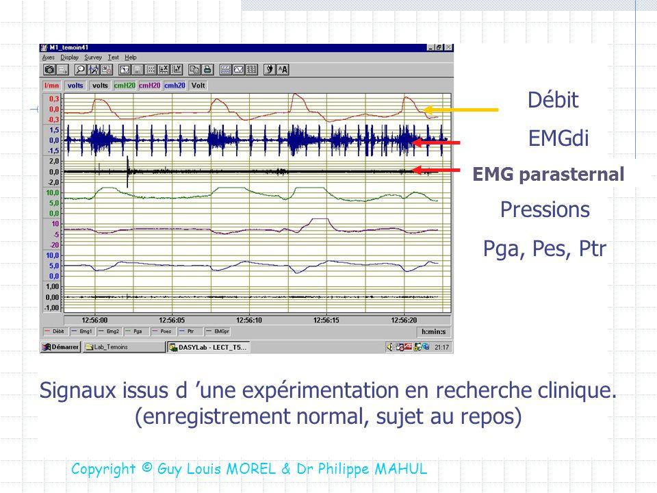 Débit EMGdi Signaux issus d une expérimentation en recherche clinique. (enregistrement normal, sujet au repos) Pressions Pga, Pes, Ptr EMG parasternal