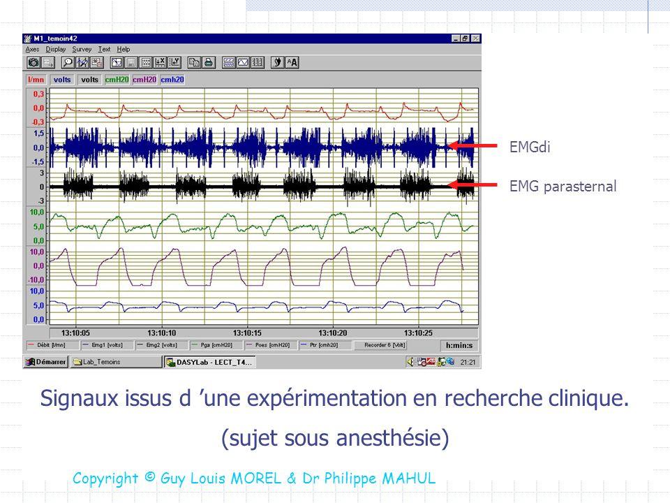 Signaux issus d une expérimentation en recherche clinique. (sujet sous anesthésie) EMGdi EMG parasternal Copyright © Guy Louis MOREL & Dr Philippe MAH