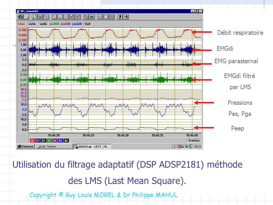 Utilisation du filtrage adaptatif (DSP ADSP2181) méthode des LMS (Last Mean Square). Débit respiratoire EMGdi EMG parasternal EMGdi filtré par LMS LMS