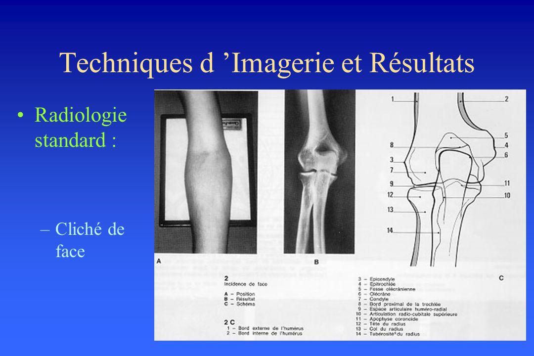 Techniques d Imagerie et Résultats Radiologie standard : –Cliché de face