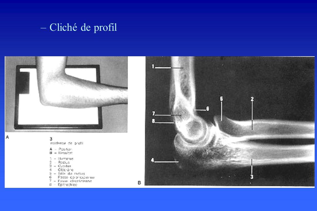 –Cas particulier de l enfant : Analyser les points d ossification sur un profil strict : –l axe de la diaphyse radiale passe par le centre du noyau condylien en flexion et en extension –la ligne humérale antérieure traverse le tiers moyen du noyau condylien