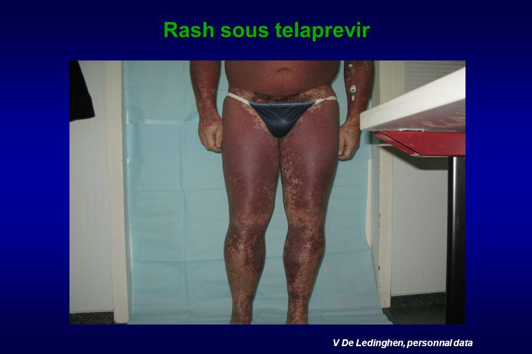 V De Ledinghen, personnal data Rash sous telaprevir
