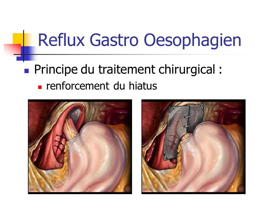 Reflux Gastro Oesophagien Principe du traitement chirurgical : renforcement du hiatus