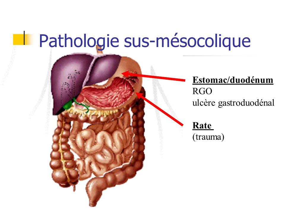 sigmoïdite Radiologie : (ASP : NHA à G) TDM abdominal avec injection