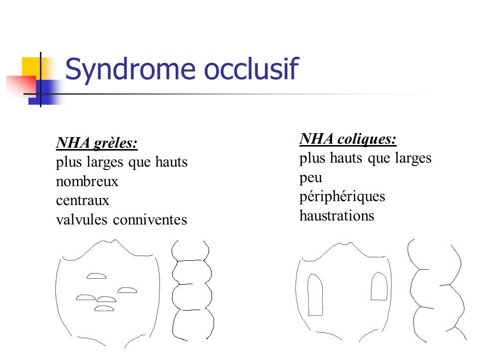 Syndrome occlusif NHA grèles: plus larges que hauts nombreux centraux valvules conniventes NHA coliques: plus hauts que larges peu périphériques haust