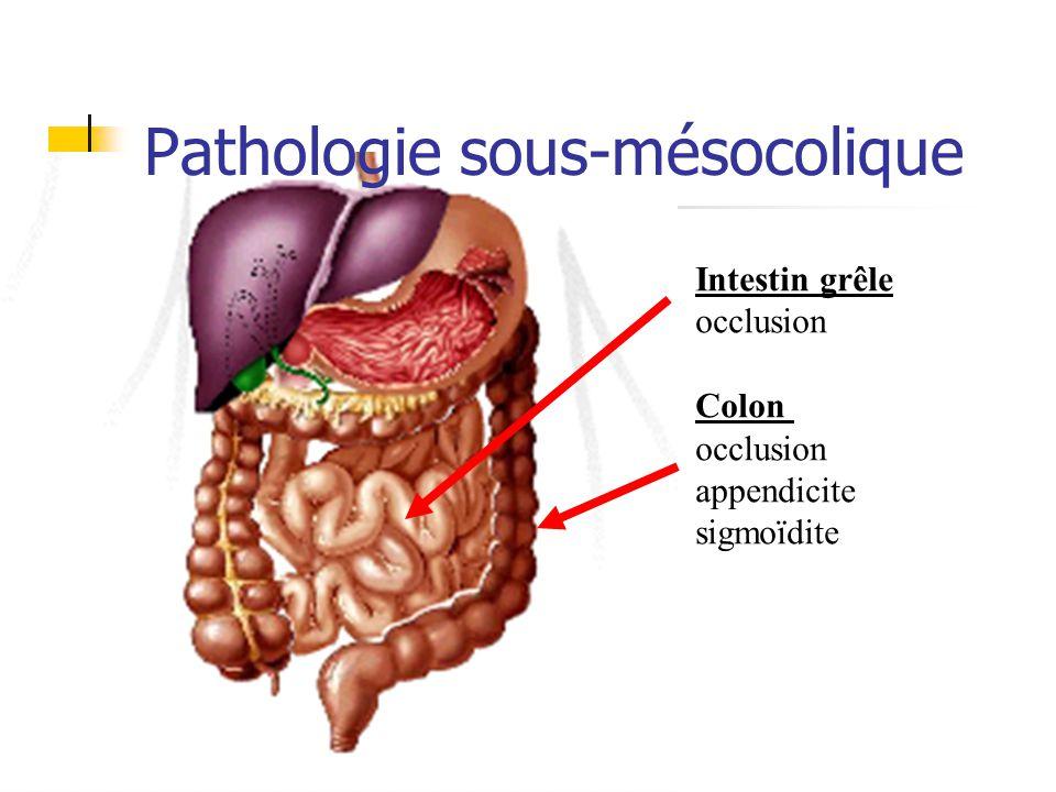Pathologie sus-mésocolique Estomac/duodénum: RGO ulcère rate: (trauma)