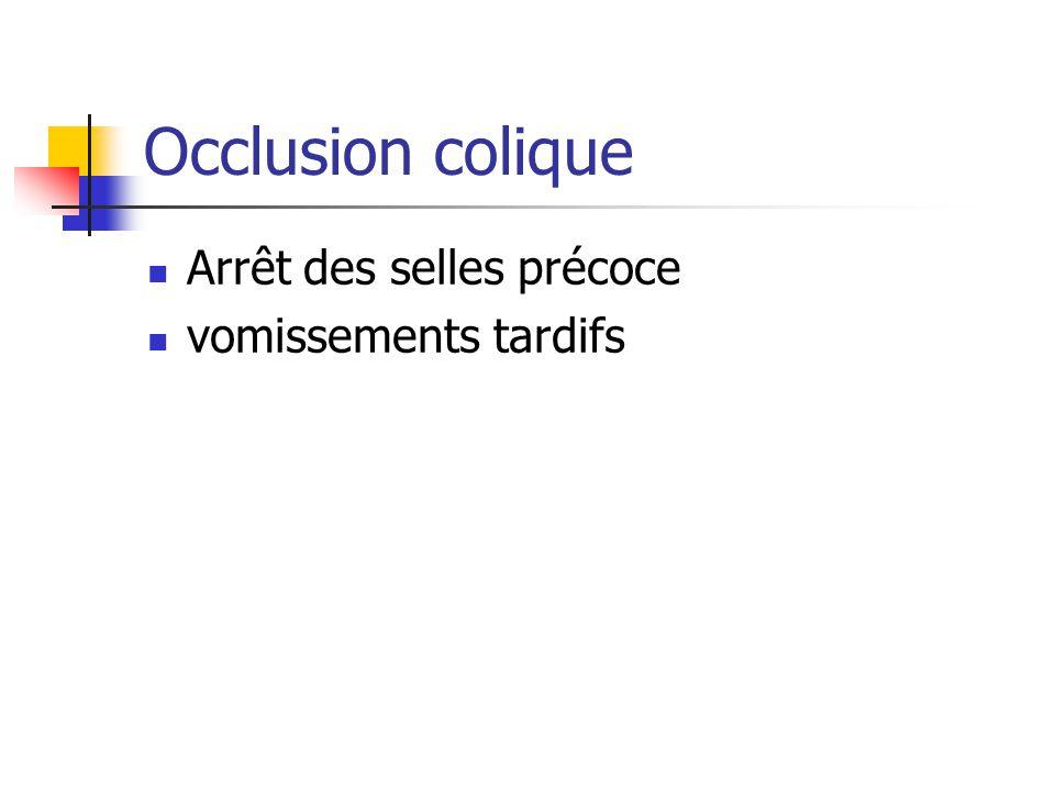 Occlusion colique Arrêt des selles précoce vomissements tardifs