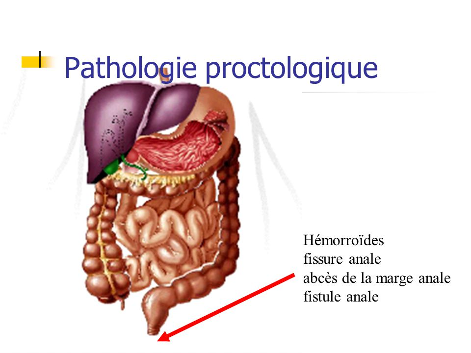 Occlusion colique Etiologies: fonctionnelle: (infection/inflammation abdominale) maladie de Hirschprung (agénésie plexus nerveux) syndrome Ogilvie (distension gazeue sans obstacle)