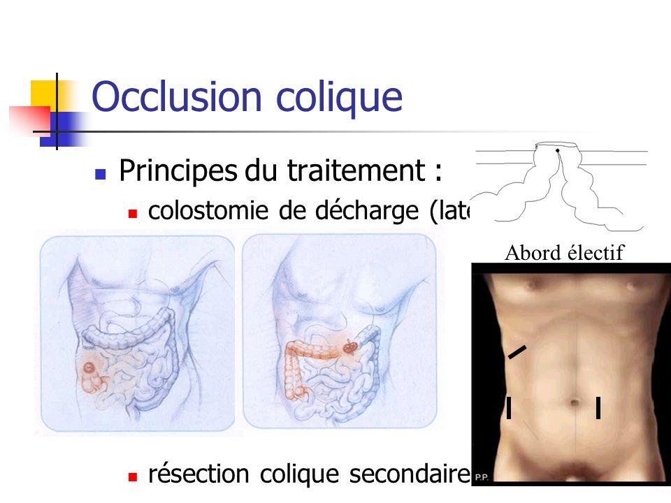 Occlusion colique Principes du traitement : colostomie de décharge (latérale) résection colique secondaire Abord électif