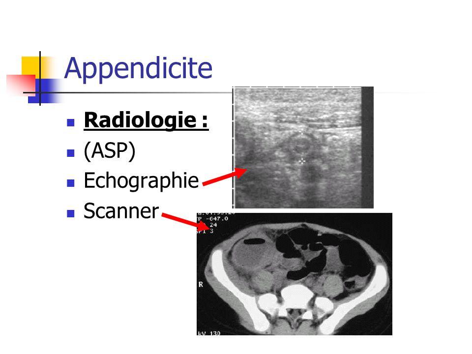 Appendicite Radiologie : (ASP) Echographie Scanner