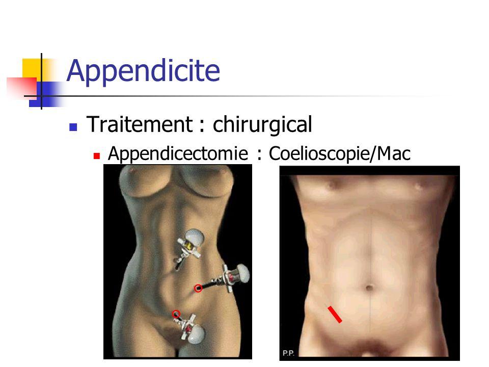 Appendicite Traitement : chirurgical Appendicectomie : Coelioscopie/Mac Burney