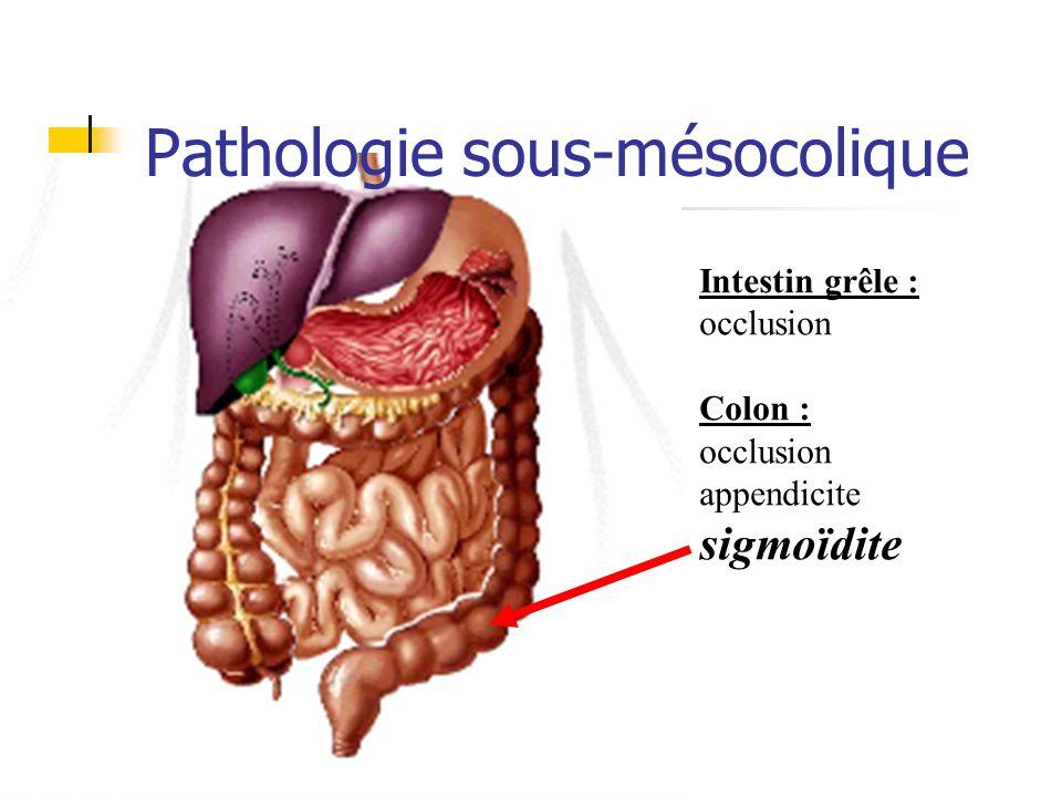 Pathologie sous-mésocolique Intestin grêle : occlusion Colon : occlusion appendicite sigmoïdite