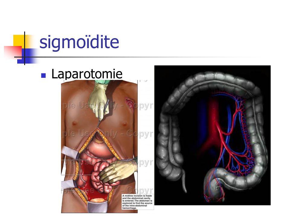sigmoïdite Laparotomie