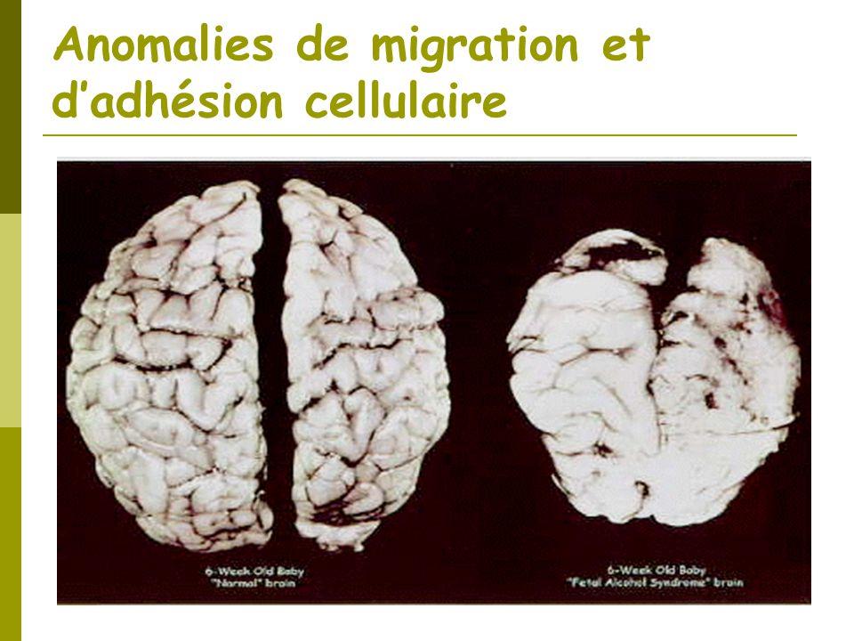 Anomalies de migration et dadhésion cellulaire