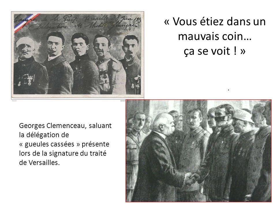 « Vous étiez dans un mauvais coin… ça se voit ! ». Georges Clemenceau, saluant la délégation de « gueules cassées » présente lors de la signature du t