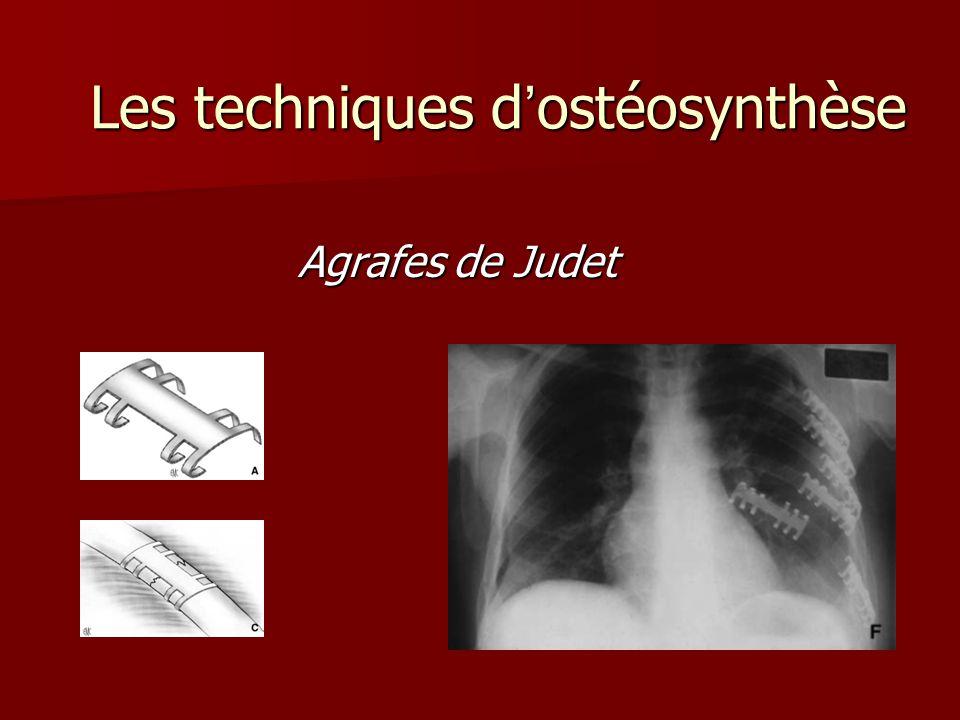 Les techniques dostéosynthèse Les techniques dostéosynthèse Agrafes de Judet Agrafes de Judet