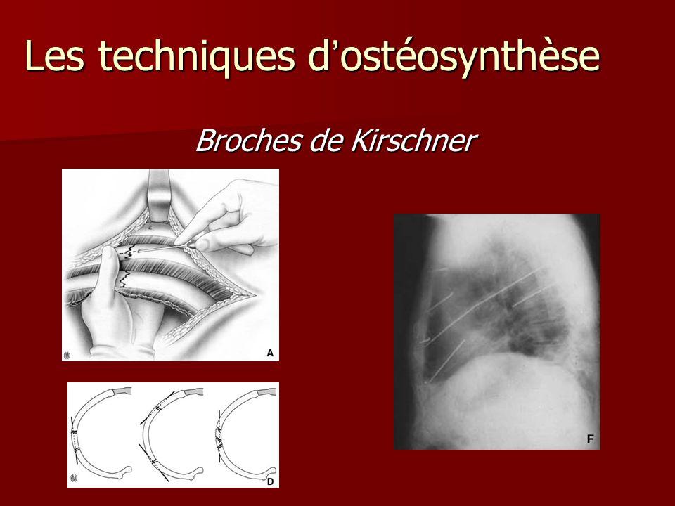 Broches de Kirschner Broches de Kirschner Lestechniquesdostéosynthèse Les techniques dostéosynthèse