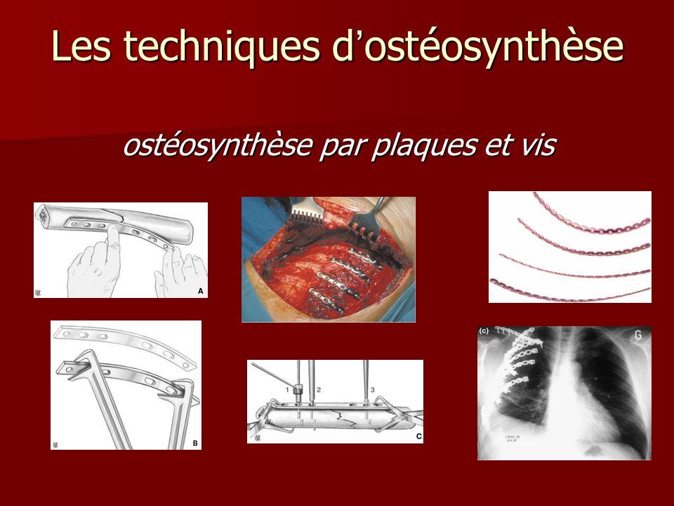ostéosynthèse par plaques et vis Les techniques dostéosynthèse
