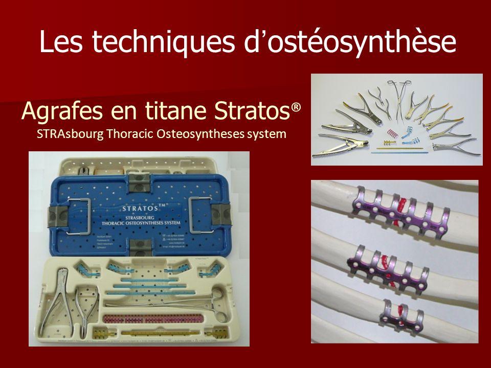 Agrafes en titane Stratos ® STRAsbourg Thoracic Osteosyntheses system Les techniques dostéosynthèse