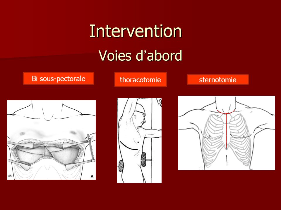 Voies dabord Bi sous-pectorale thoracotomie sternotomie Intervention