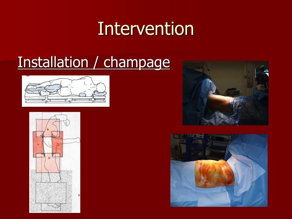 Intervention Installation / champage