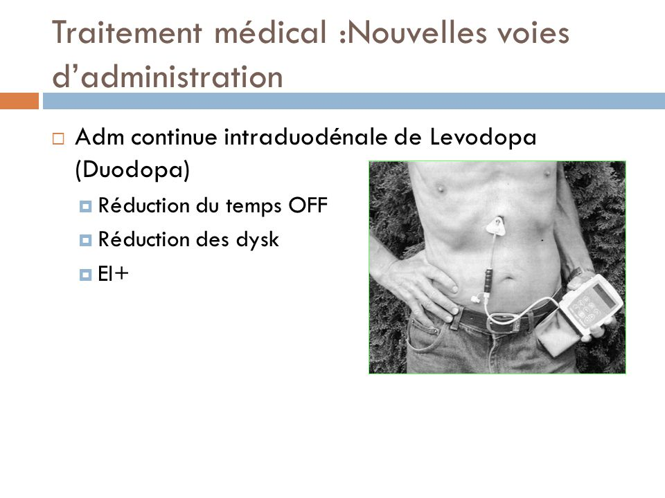 Traitement médical :Nouvelles voies dadministration Adm continue intraduodénale de Levodopa (Duodopa) Réduction du temps OFF Réduction des dysk EI+