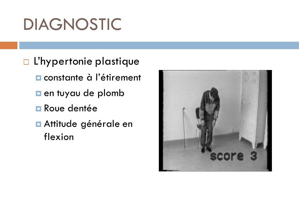 Lhypertonie plastique constante à létirement en tuyau de plomb Roue dentée Attitude générale en flexion